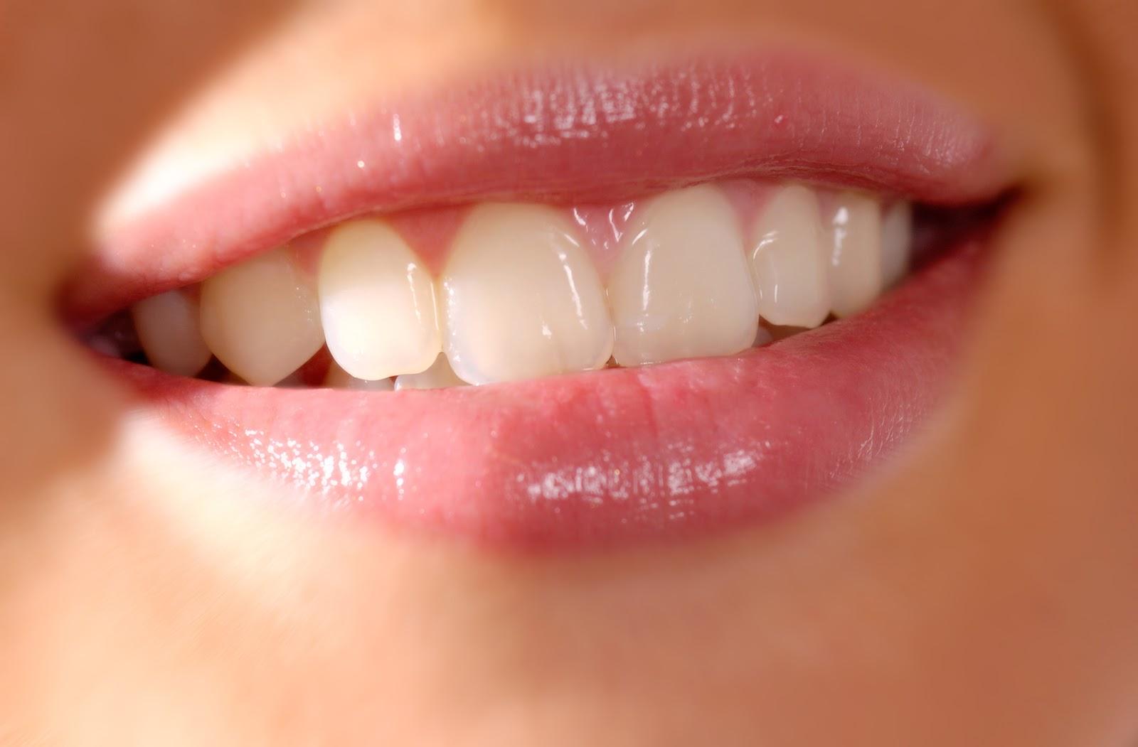 Evde diş ağrısı nasıl kurtulur