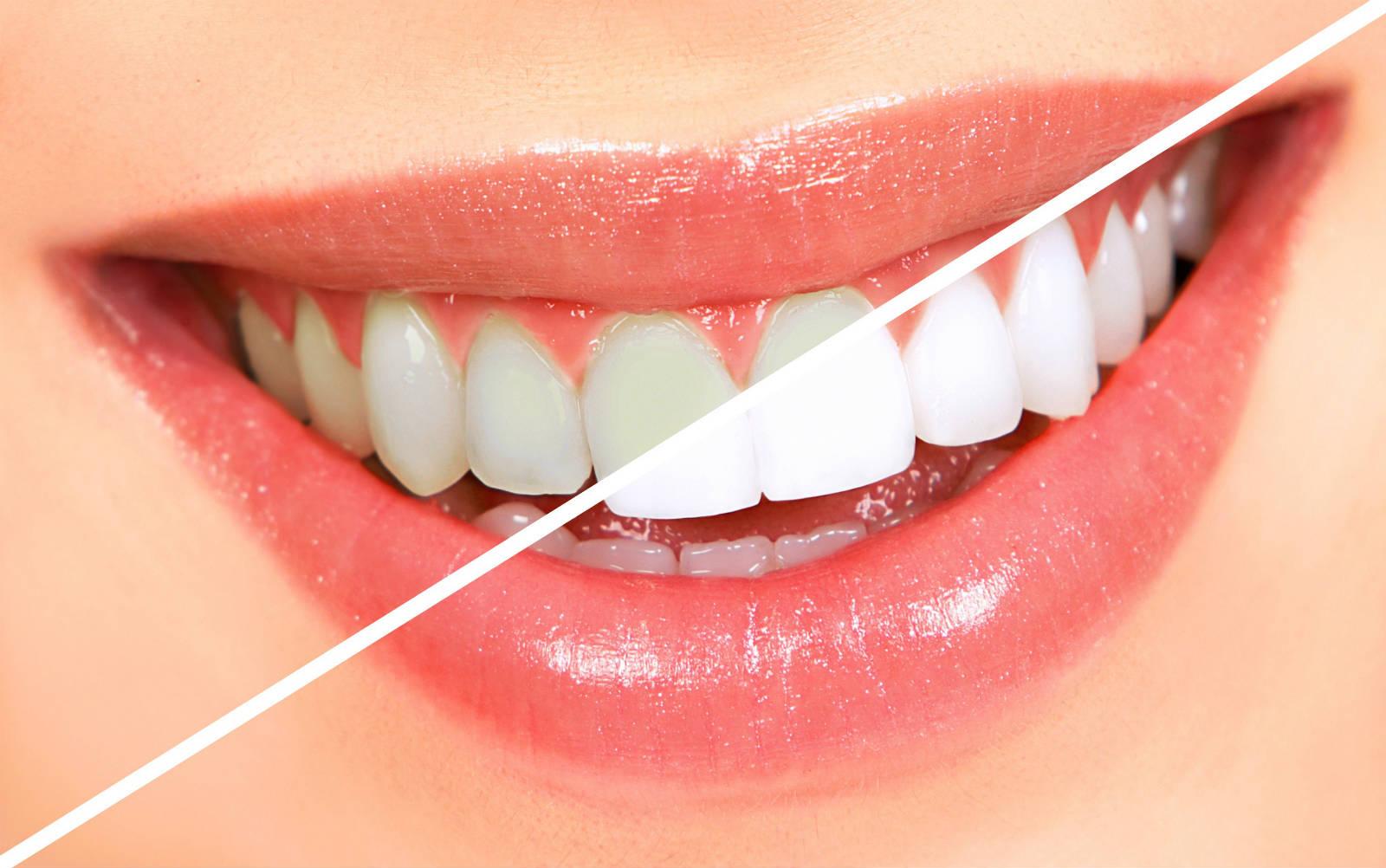 Diş eti çekilmesi nasıl önlenir